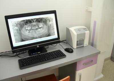 Obraz zdjęcia RTG na ekranie monitora